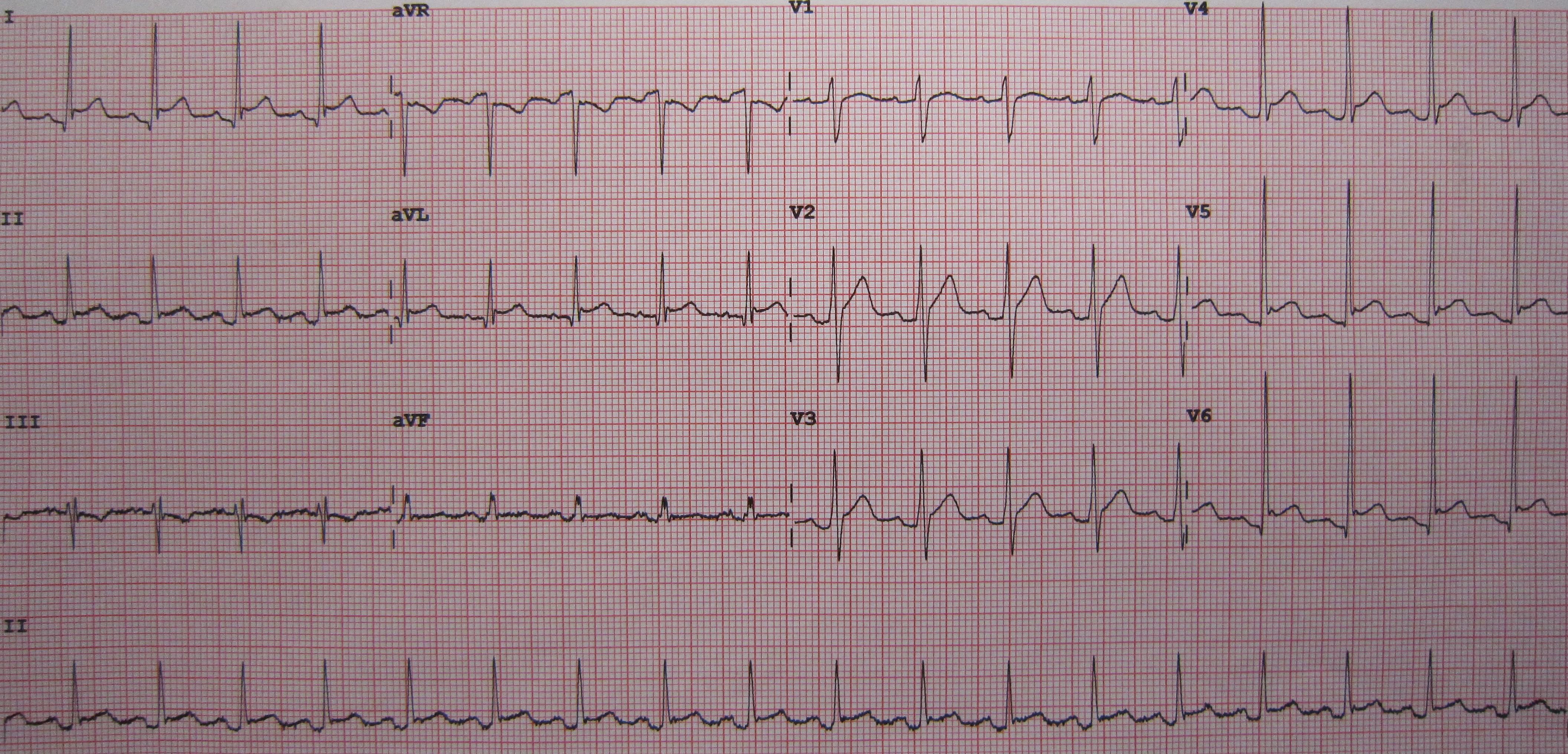 microcardia symptoms