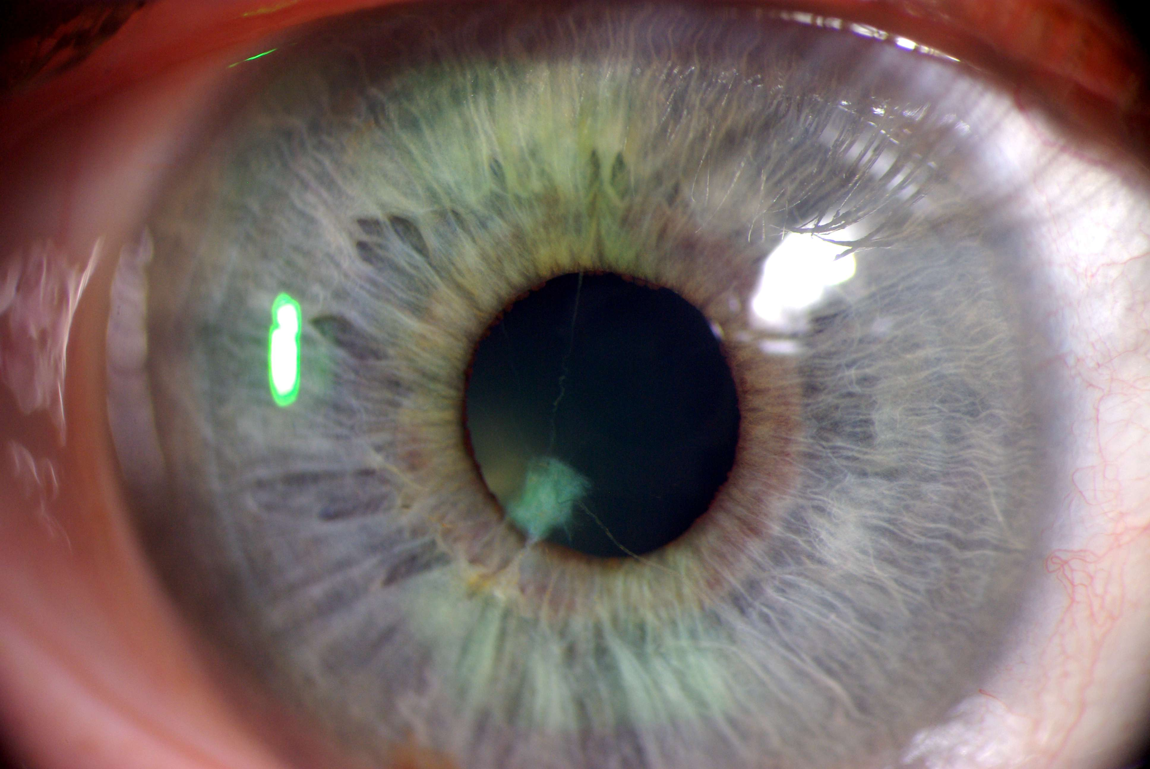 Окулярный ишемический синдром фото