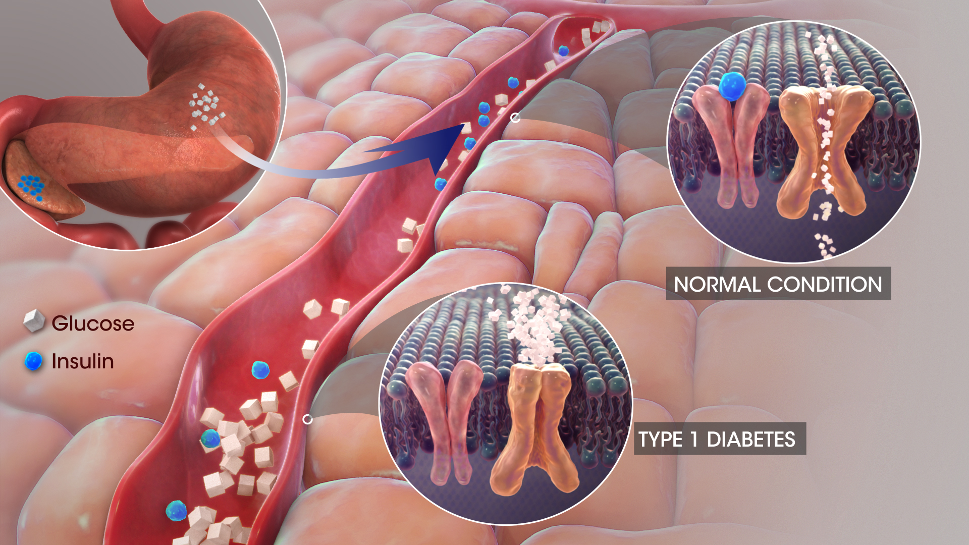 3D Medical Animations & Videos