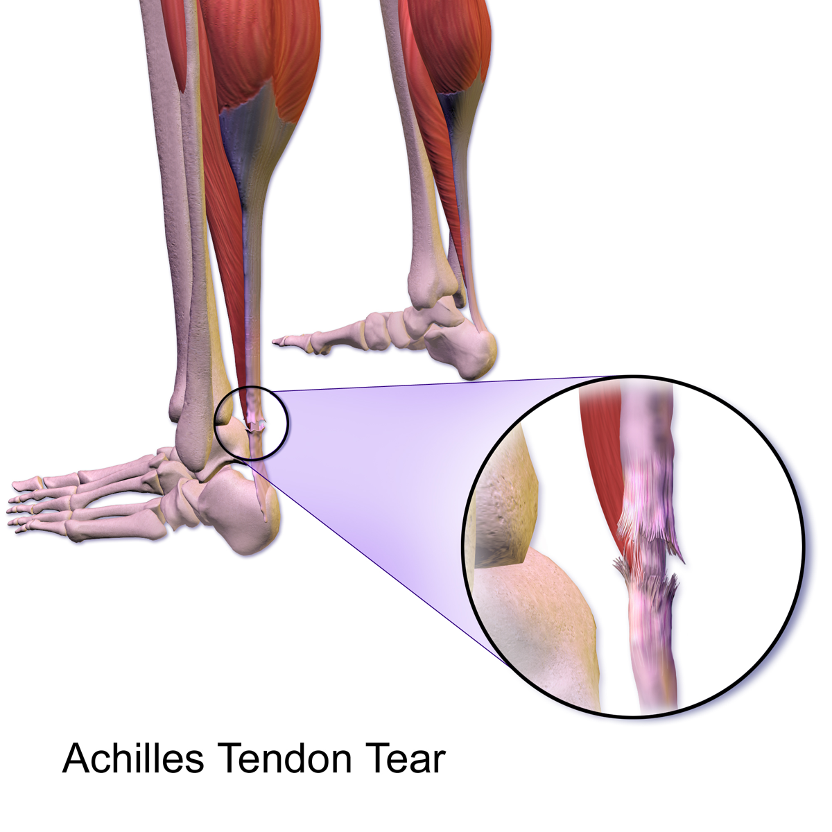 Whats The Difference Between A Ligament Sprain And A Muscletendon