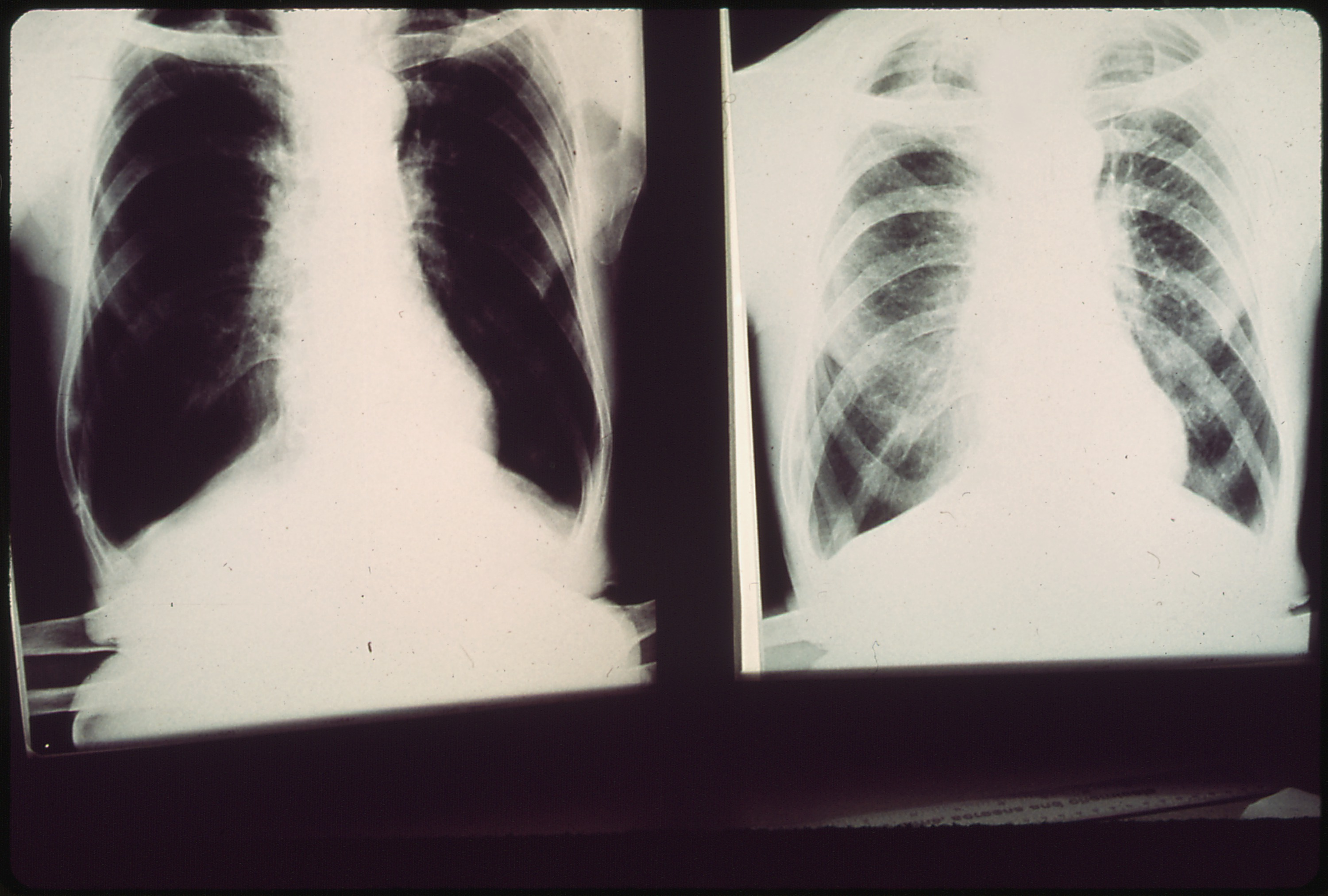 Black Lung Disease