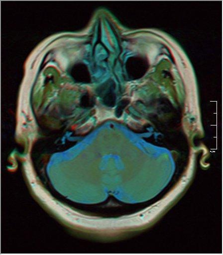 Brain MRI 0133 15.jpg