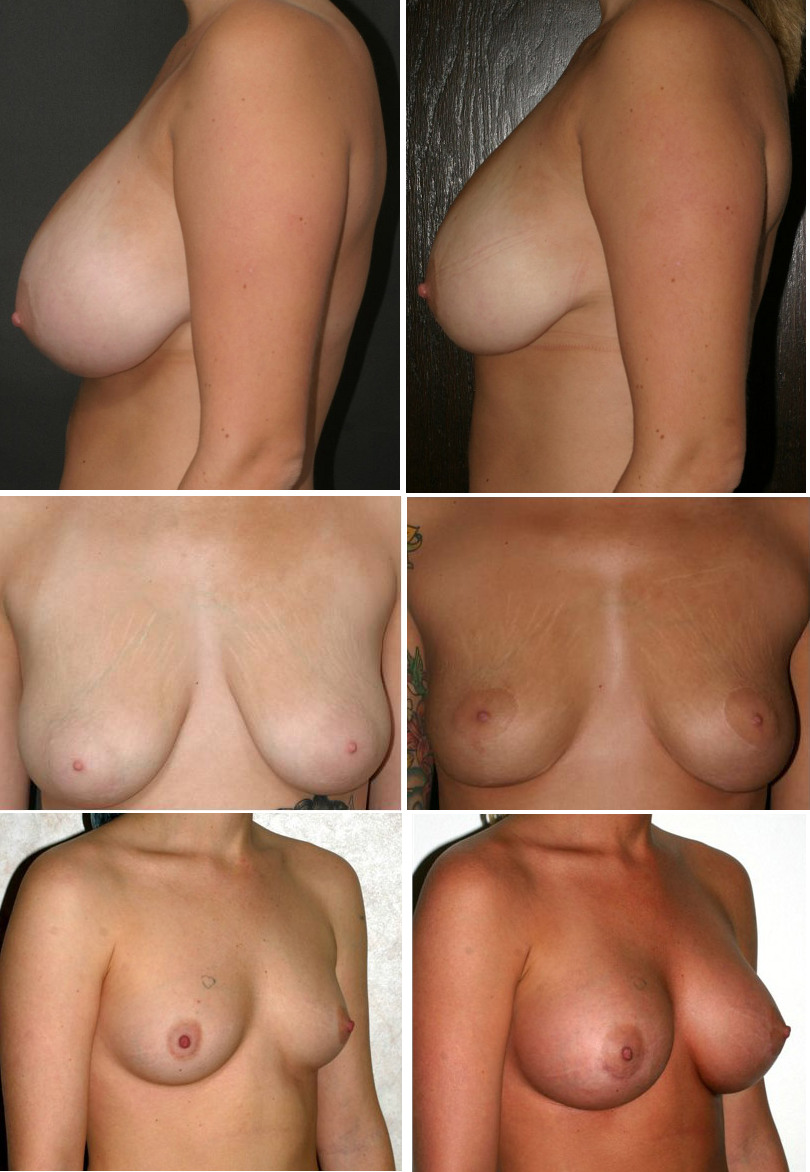 Alternate boob surgery pictures women