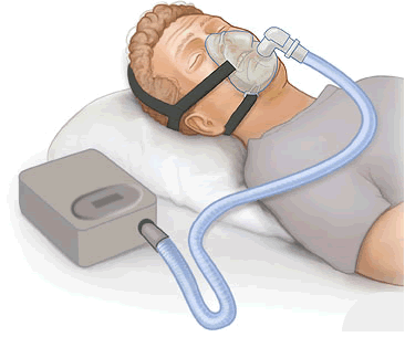 Image result for cpap machine