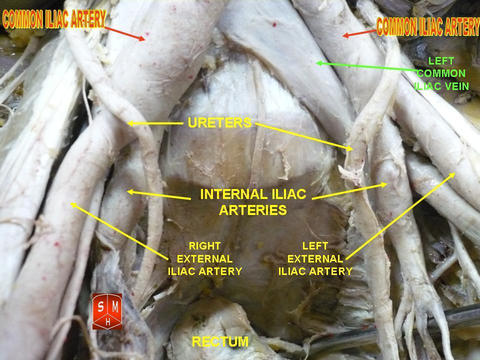 Filecommon Iliac Arteryg Wikimedia Commons