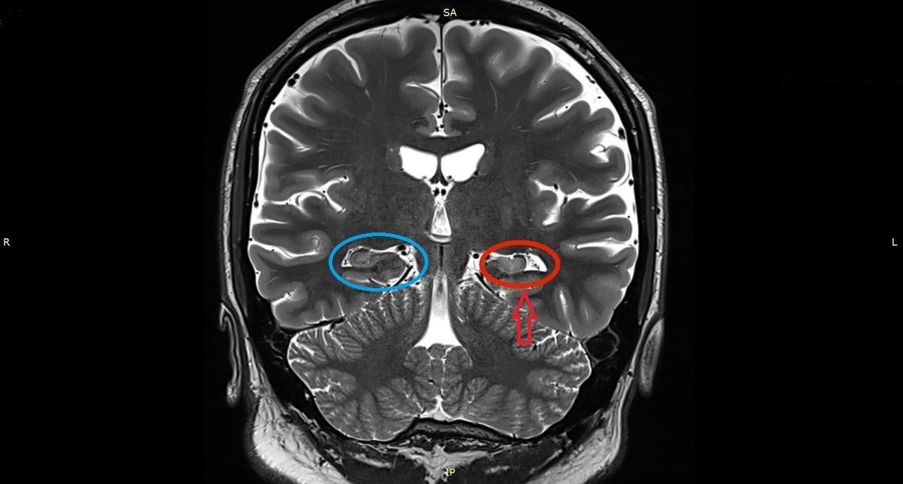 Hip-sclerosis, mint kezelni, Mozgásszervi betegségek
