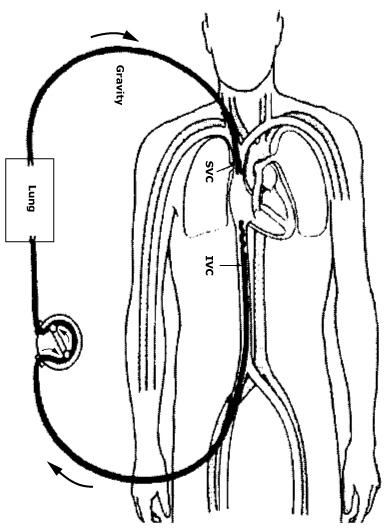File Veno Venous  VV  ECMO for isolated respiratory failure