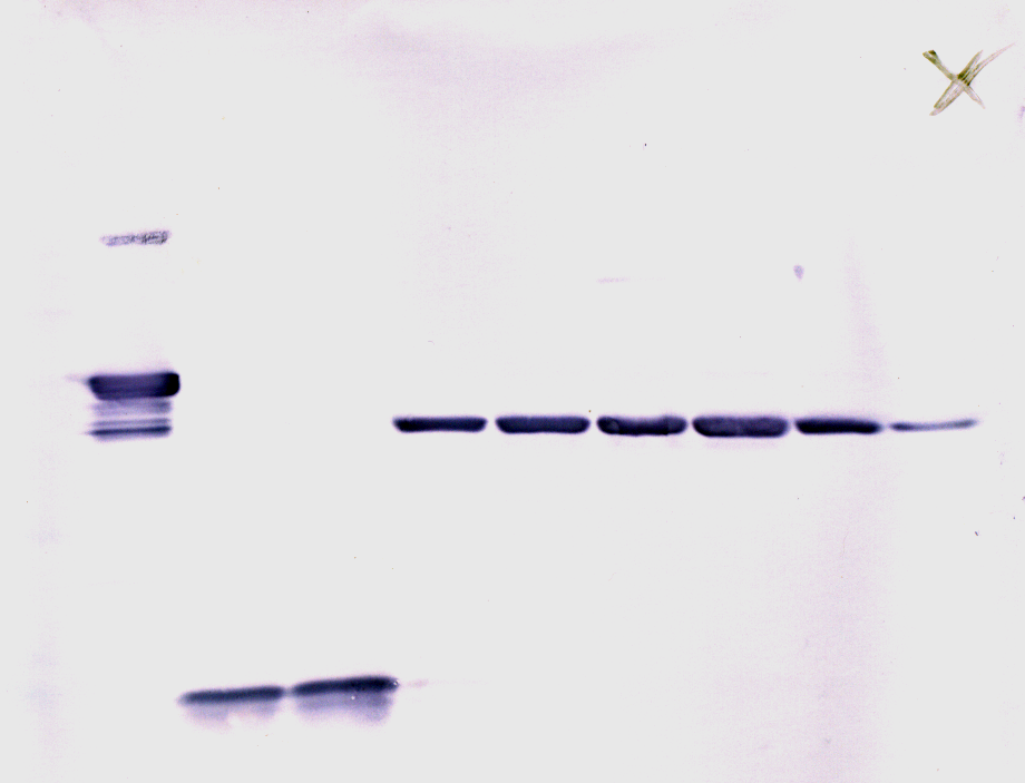western blot research paper Cancer research clinical overview of western blotting overview of western blotting the process involves the use of porous pads and filter paper to.