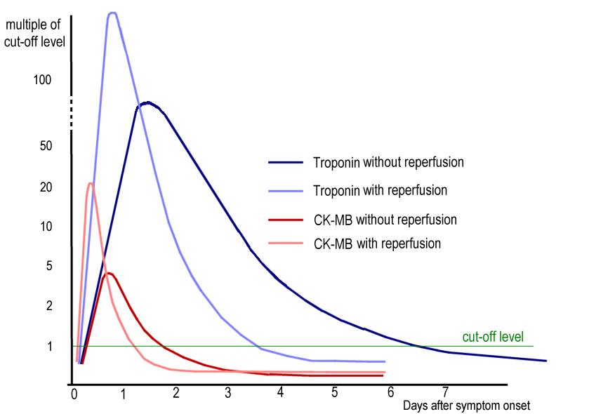 CPK-MB test - Wikipedia
