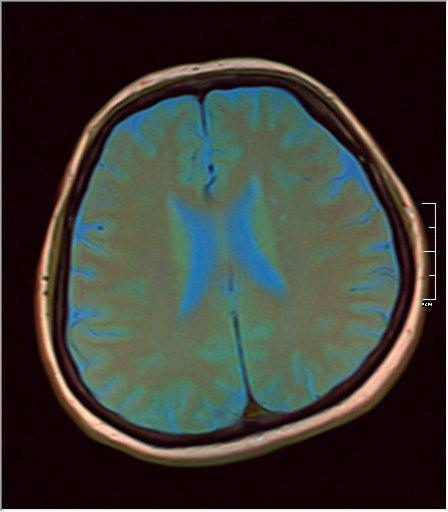 Brain MRI 0125 07.jpg