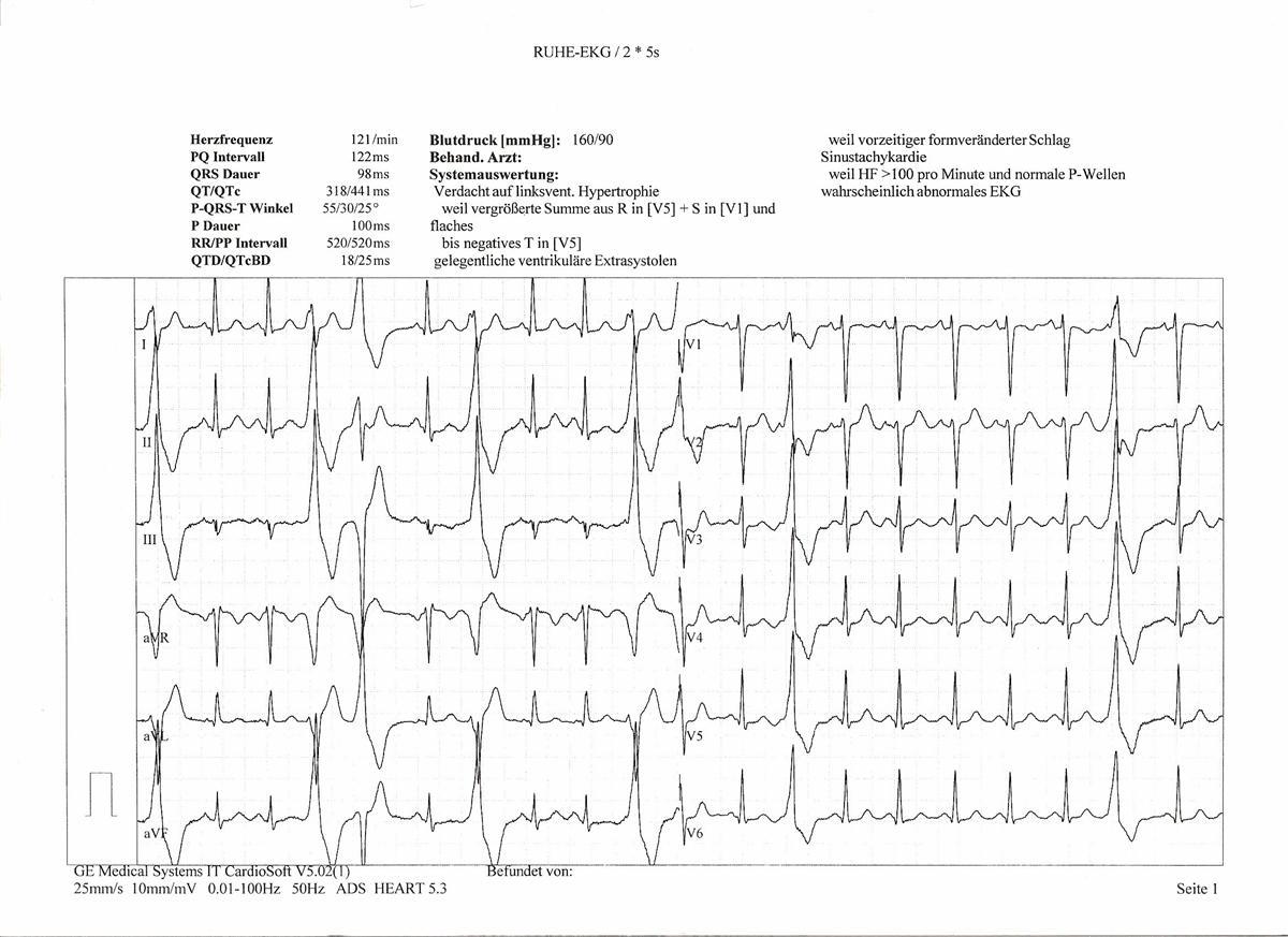 erratic heartbeat
