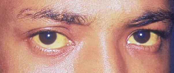 File:Jaundice eye new.jpg