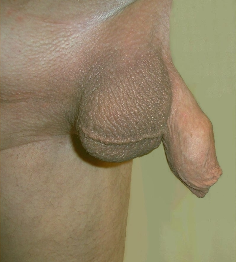 males-with-shaved-genitalia-big
