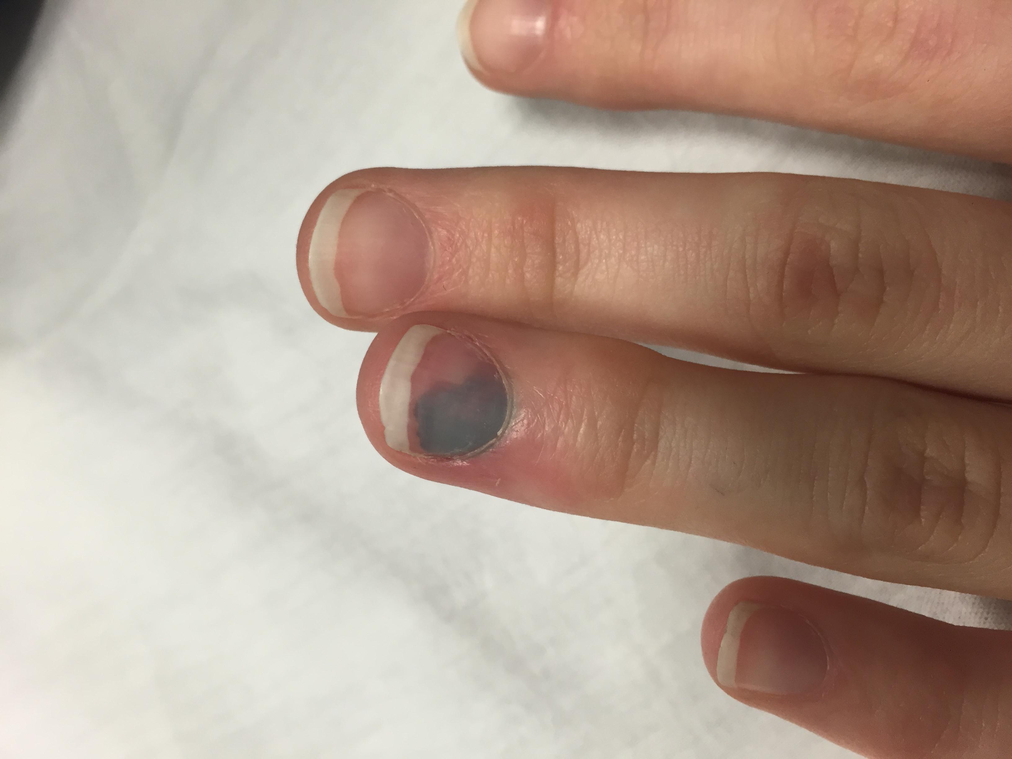 Fingernagel warze entfernen unterm Hausmittel gegen
