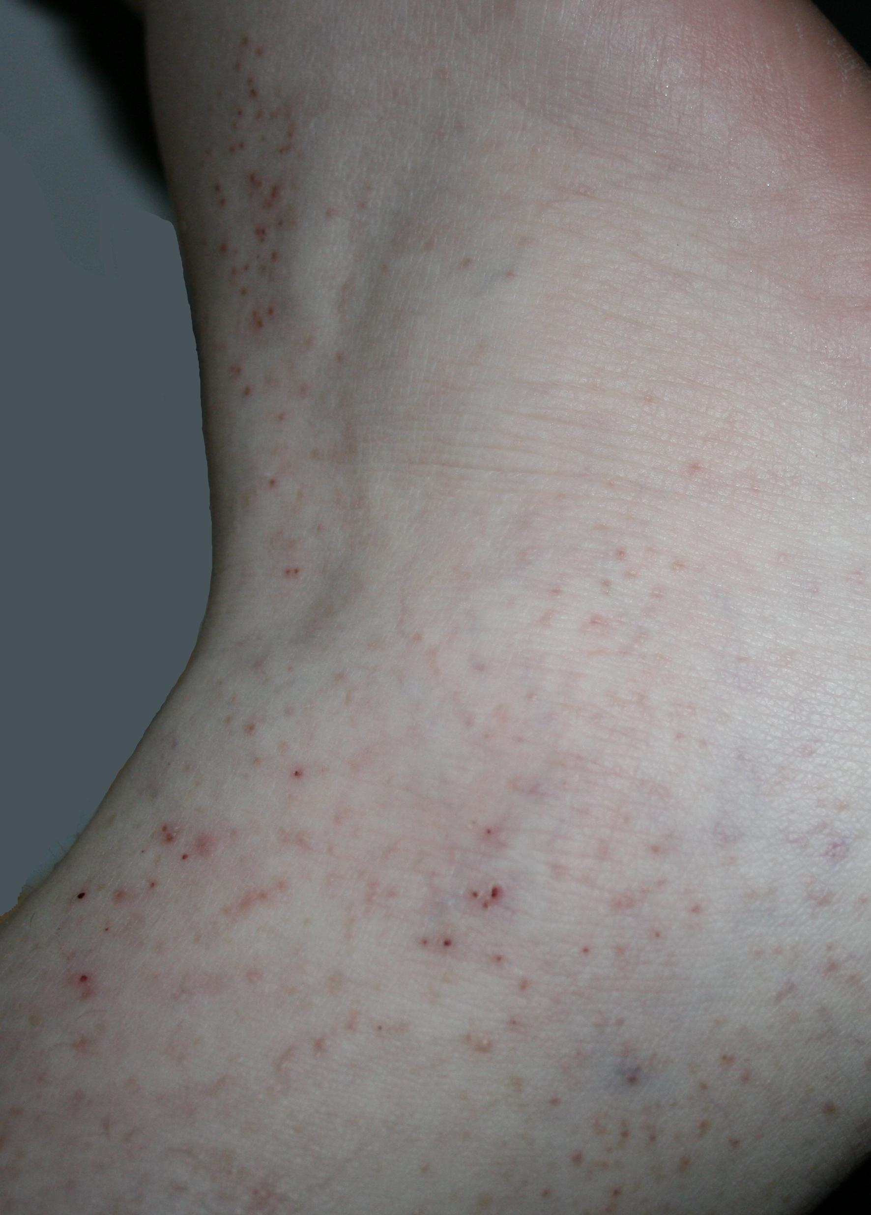 acido urico obesidad inyecciones para el dolor de acido urico la pina es buena para eliminar el acido urico