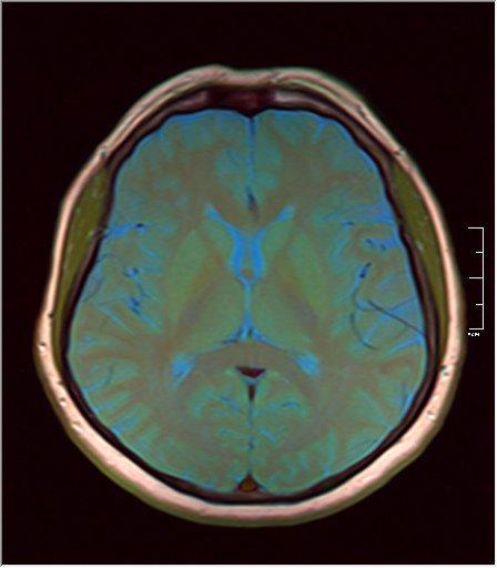 Brain MRI 0106 09.jpg