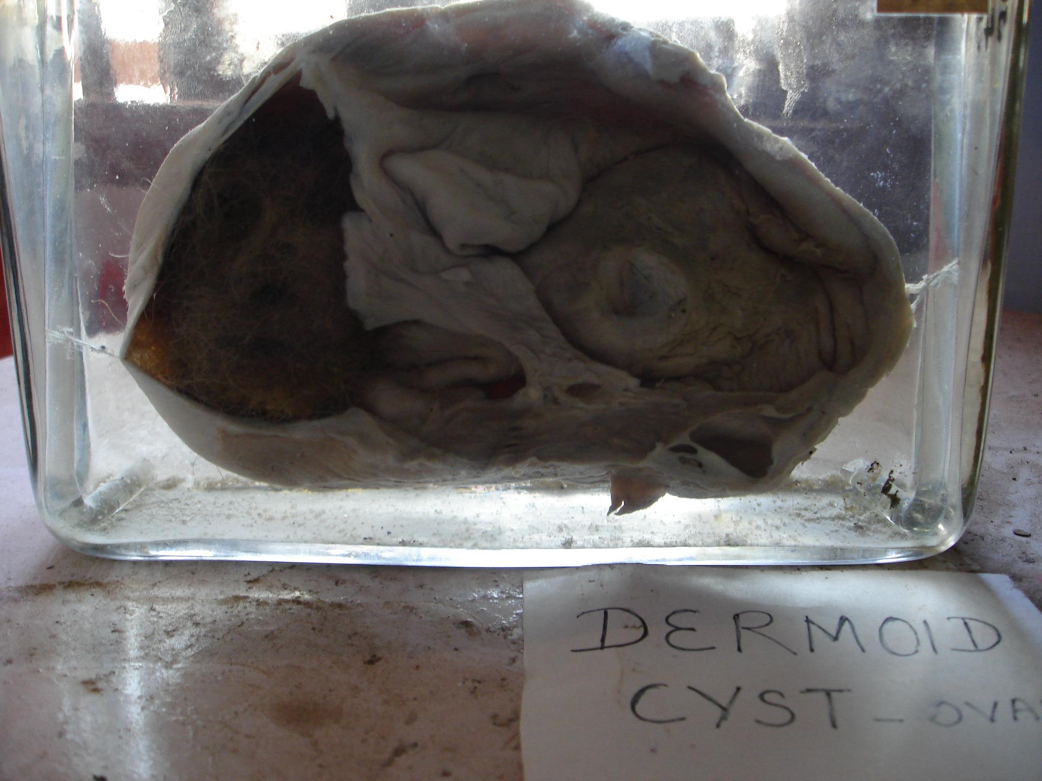 File:Dermoid Cyst.JPG - Wikimedia Commons
