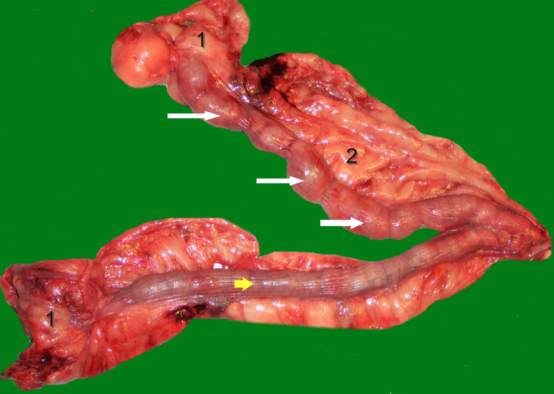 Glandulär zystische Hyperplasie des Endometriums   Wikiwand