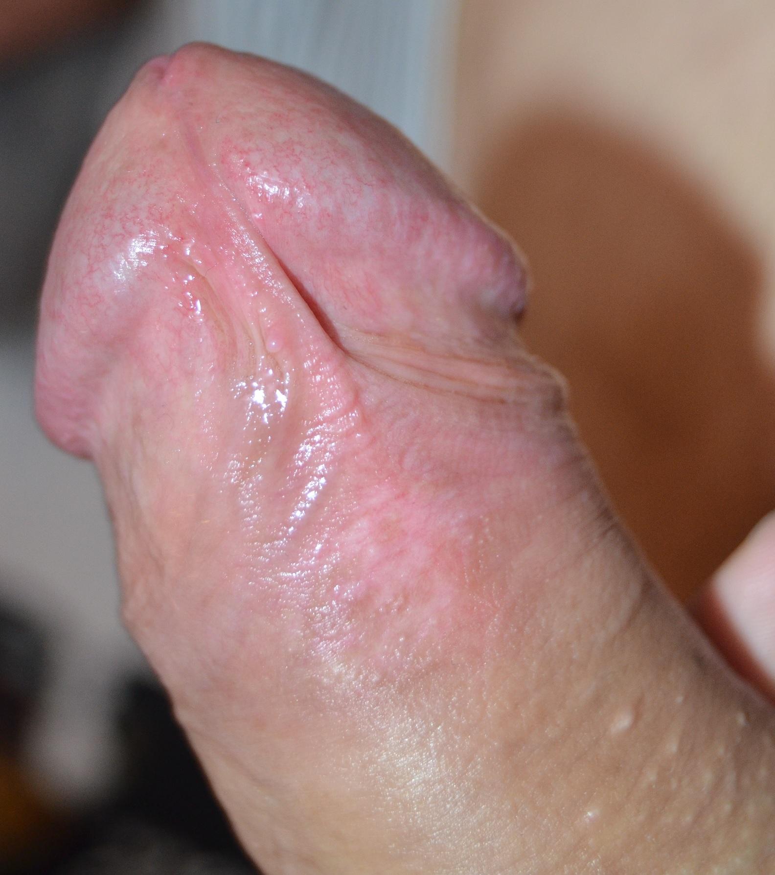 Penis glan sleeve penis bigger extender delay premature ejaculation man enhancer