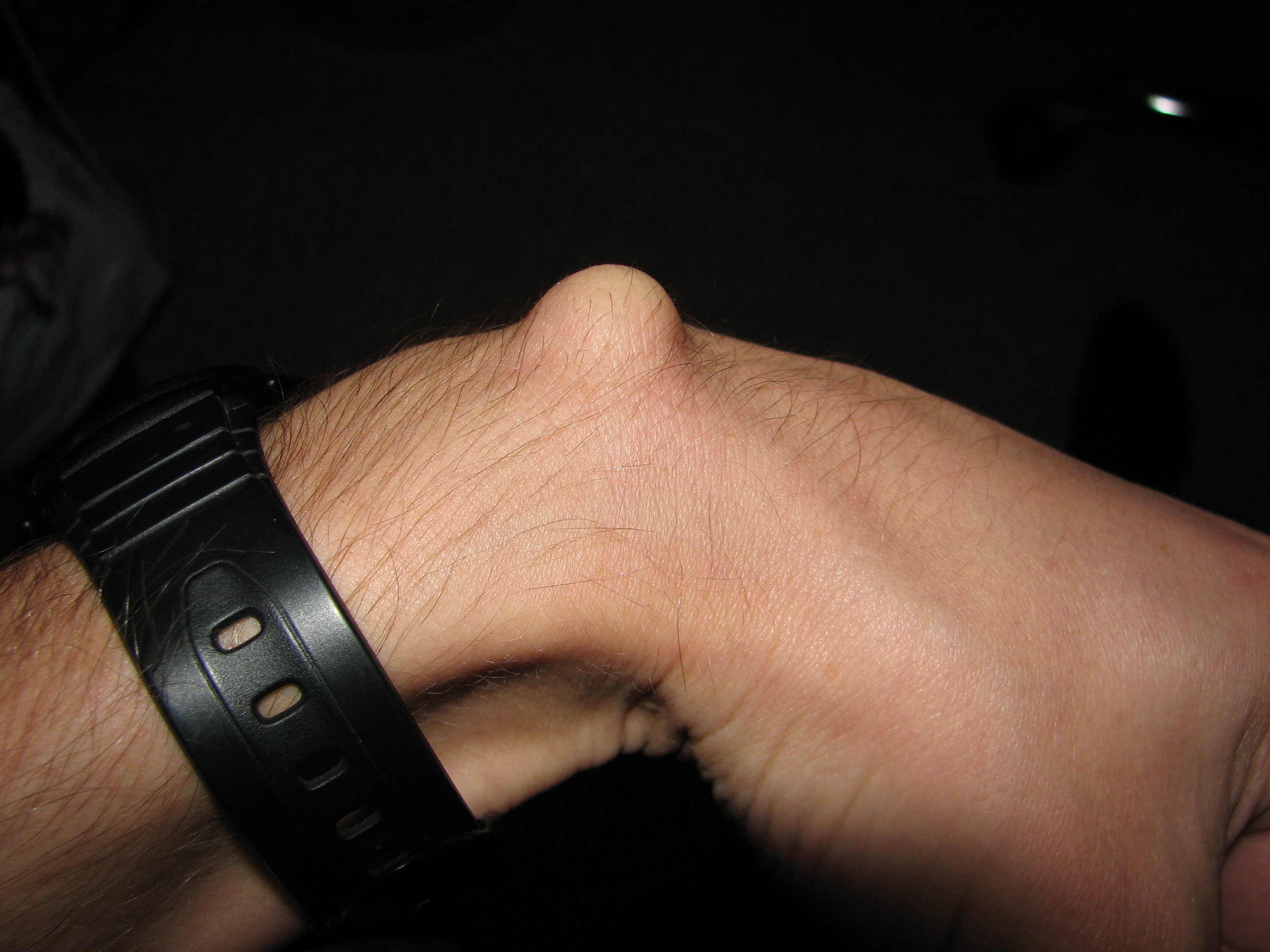 Ganglion (Überbein) - Wikiwand