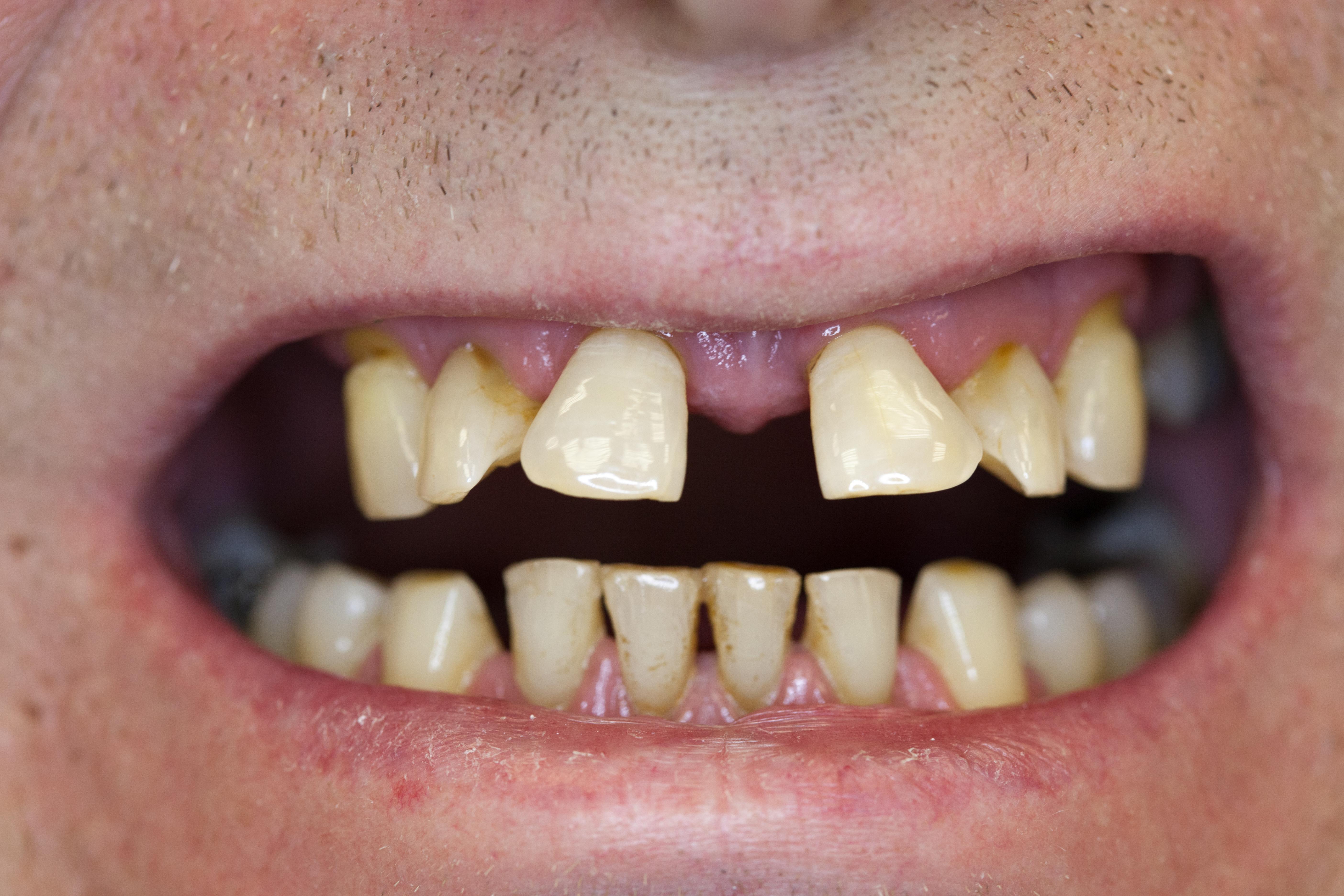Zwischen den schneidezähnen grosse zahnlücke Zahnlücke kaschieren