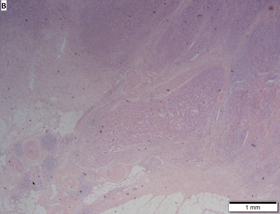 Colorectal Adenocarcinoma - Libre Pathology-3251