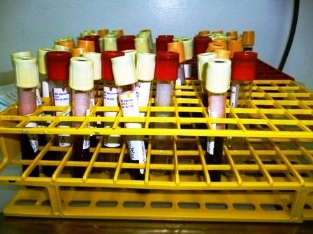 Blood in tubes (9617266704).jpg
