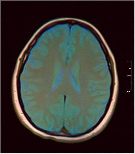 Brain MRI 0035 08 t1 pd t2 41f.jpg