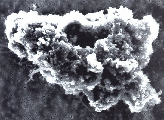 Microscopic comet dust