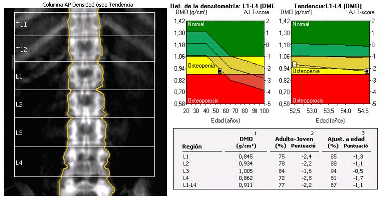 cuanto cuesta una densitometria osea en argentina