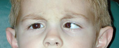 English: Strabismus: Accommodative Esotropia, ...