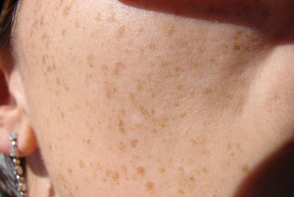 FrecklesCloseup.jpg