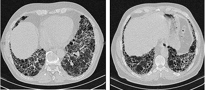 critical pathway idiopathic pulmonary fibrosis essay