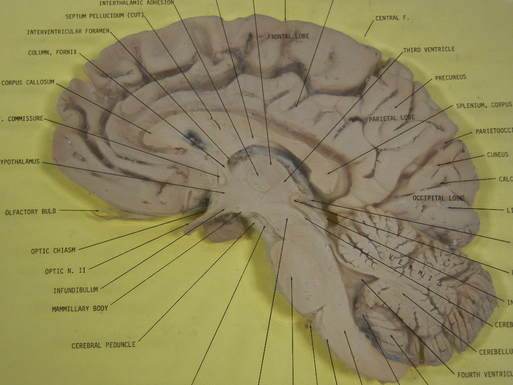 File:Human Brain Sagittal Section.JPG - Wikimedia Commons