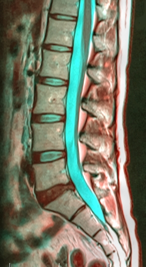 https://upload.wikimedia.org/wikipedia/commons/8/82/Lumbar_spine_133906_rgbca_40f.png