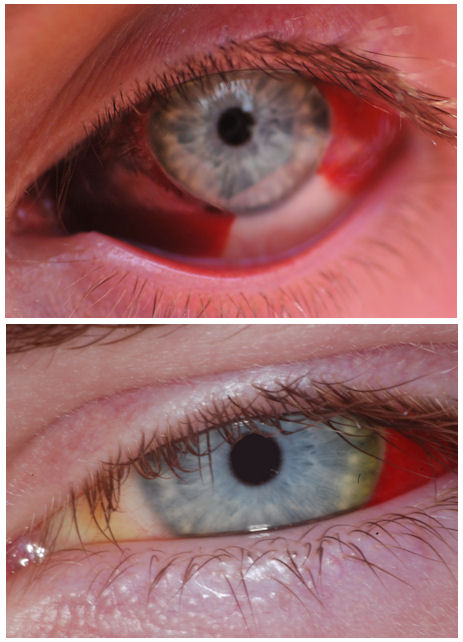 pictures of subconjunctival hemorrhage