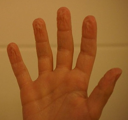 File:Wrinkly Fingers 003.JPG
