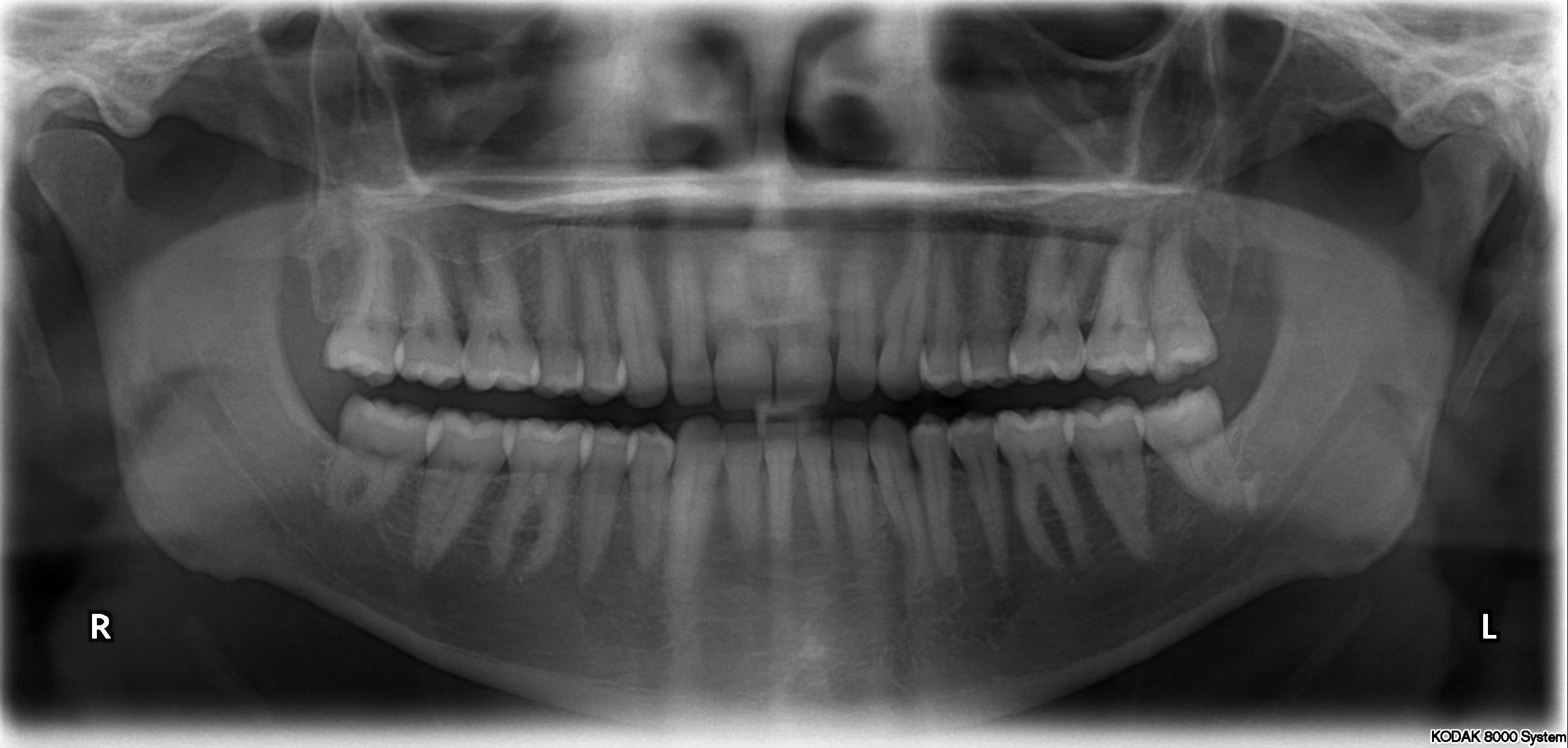 xray of front teeth - photo #2