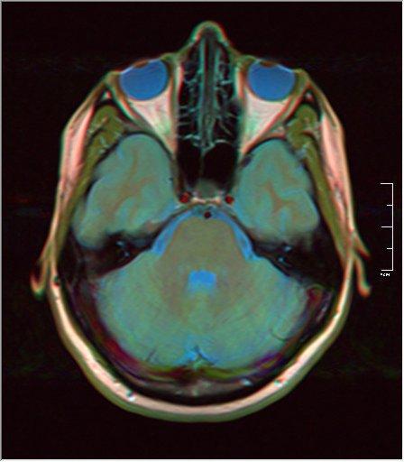 Brain MRI 0053 14.jpg