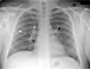 Chest_X-ray_of_discrete_round_nodules_after_secondary_tuberculosis