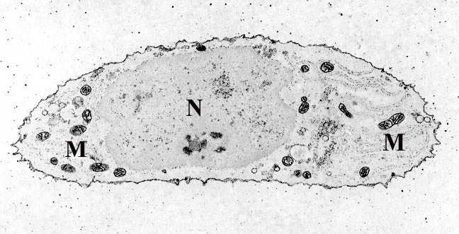Transmission electron micrograph of a chondrocyte, stained for calcium, showing its nucleus (N) and mitochondria (M). Chondrocyte- calcium stain.jpg