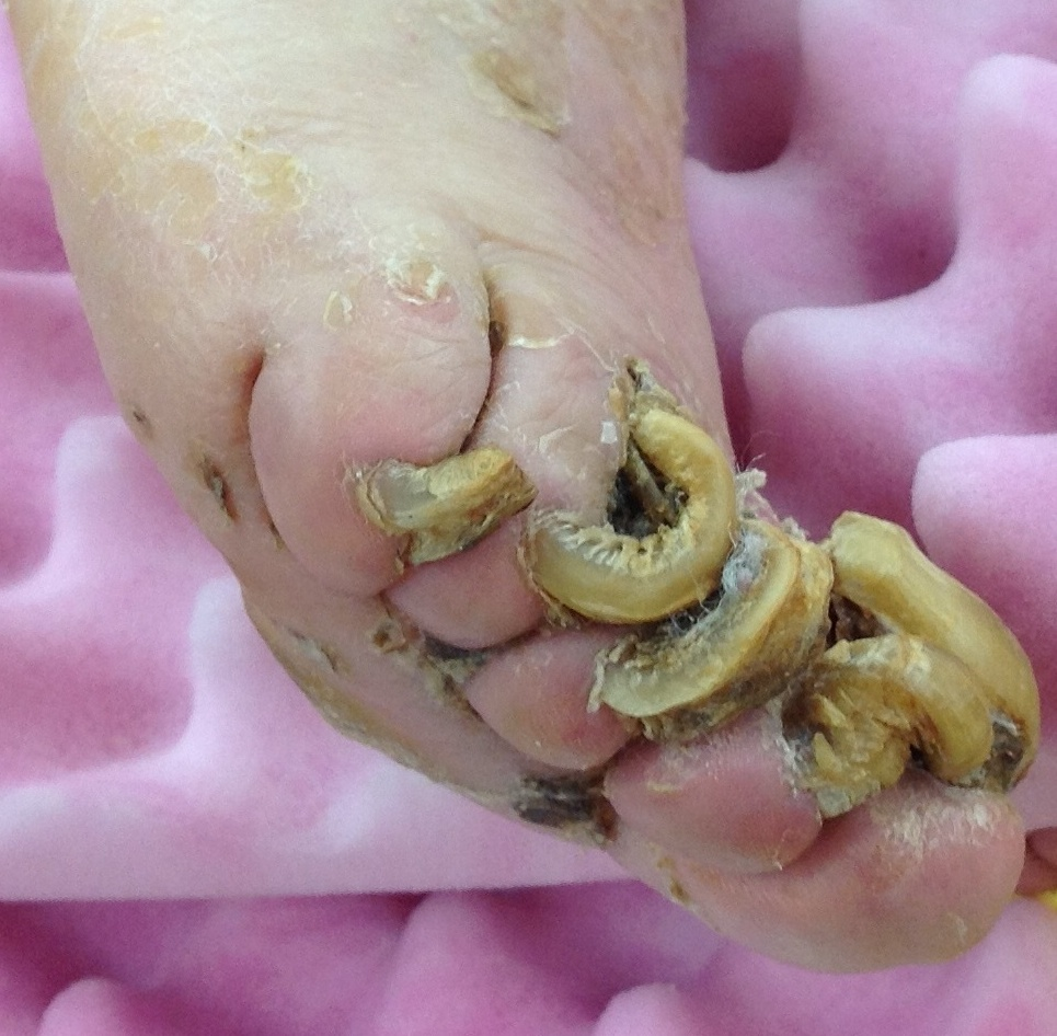 toenail conditions #10