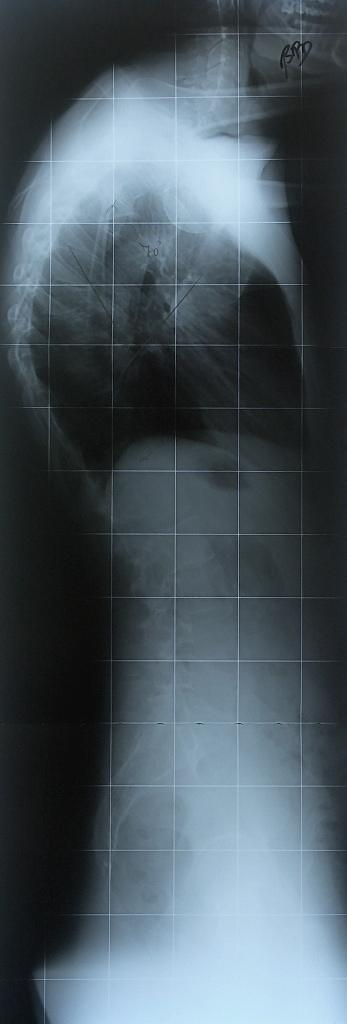muskeln des menschen pdf