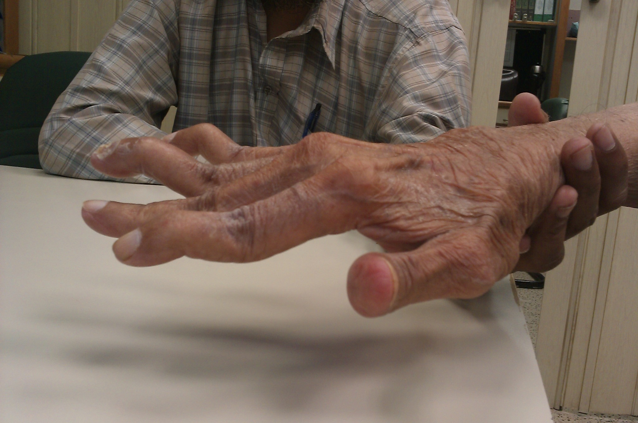File:Swan neck deformity in a 65 year old Rheumatoid Arthritis ...
