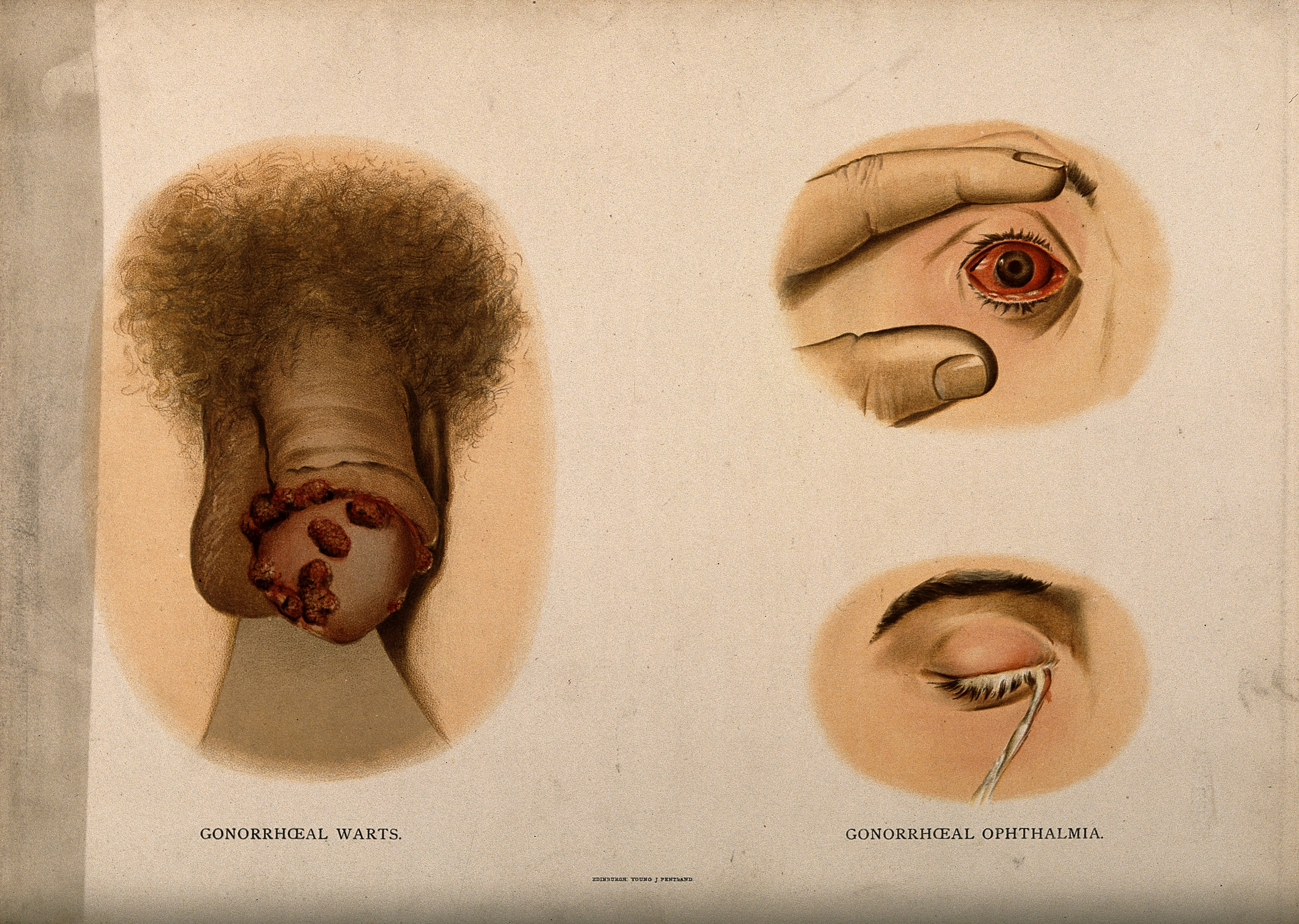 File:A penis with a skin disease on the glans; and two examples o