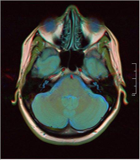 Brain MRI 0053 15.jpg