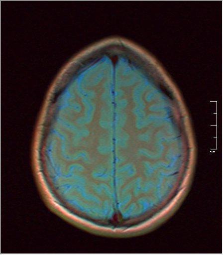 Brain MRI 0189 03.jpg