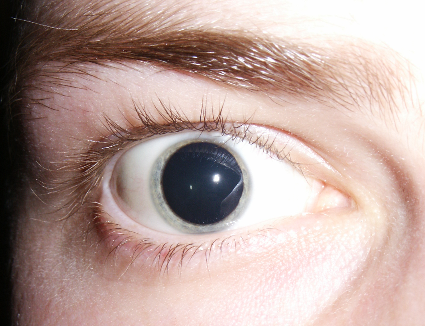 Pupils on molly