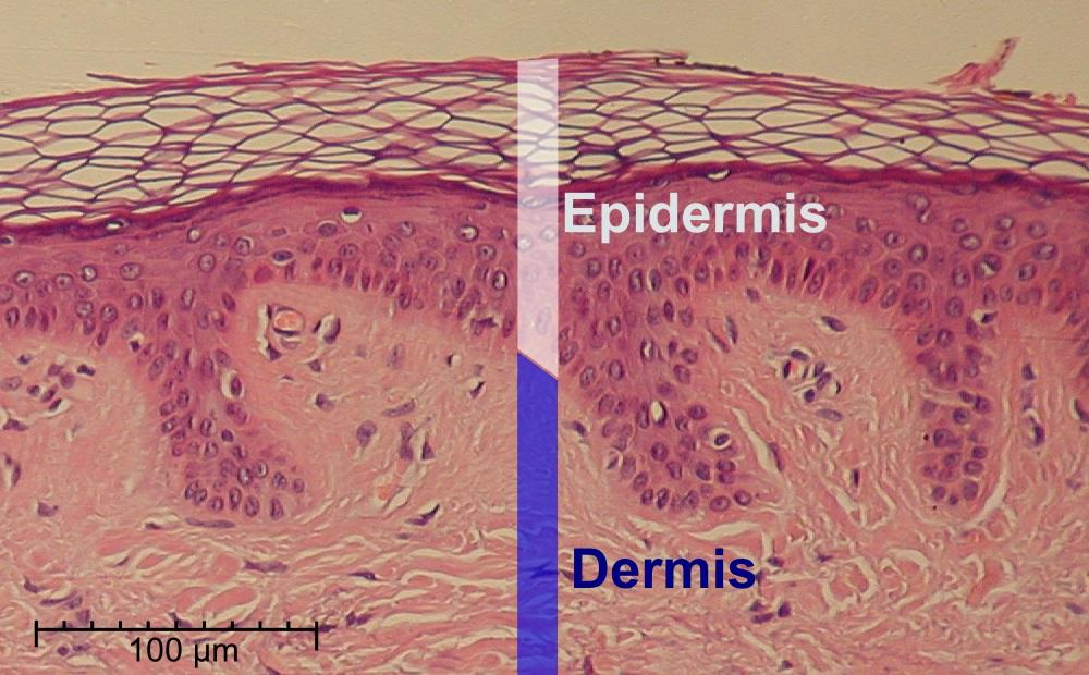 epidermis - wikipedia, Cephalic vein