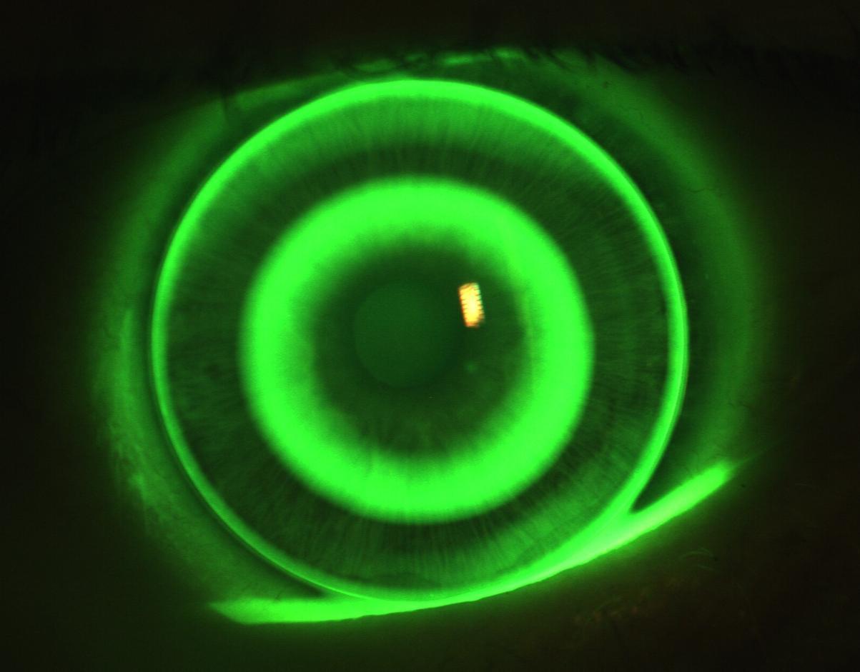 File:Fluoreszeinbild Ortho-K.JPG - Wikimedia Commons